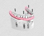 Appareil résine complet fixé sur 6 implants dentaires