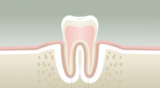 Parodontologie Stade 1